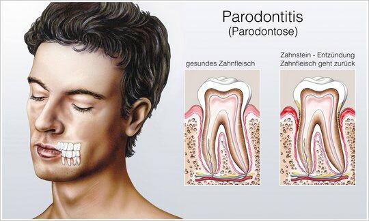 parodontosebehandlung kosten tk
